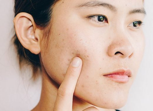 4 Dermatologist-Approved Tips For Dealing With Dry & Acne-Prone Skin