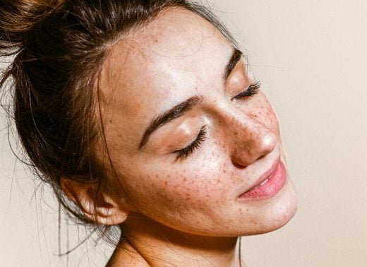 Do You Have Freckles, Melasma Or Dark Spots? Tips For Identifying Each