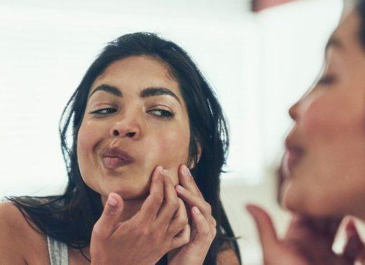 How Eye Drops Can Make An Angry Pimple Less Red