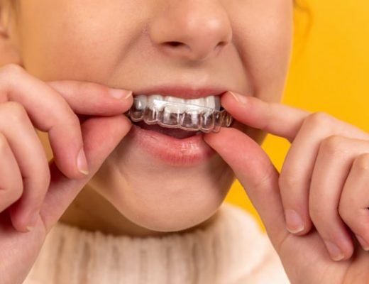 The Health Advantages Of Aligned Teeth - Art of Healthy Living